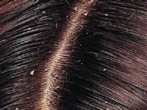 Dandruff Causes, Symptoms & Treatments