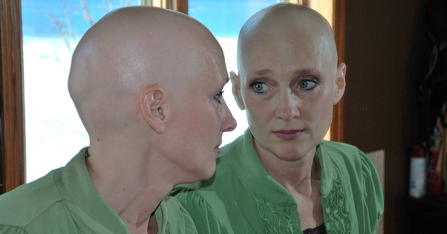 All you need to know about cancer treatment induced hair loss and how to donate hair to charity