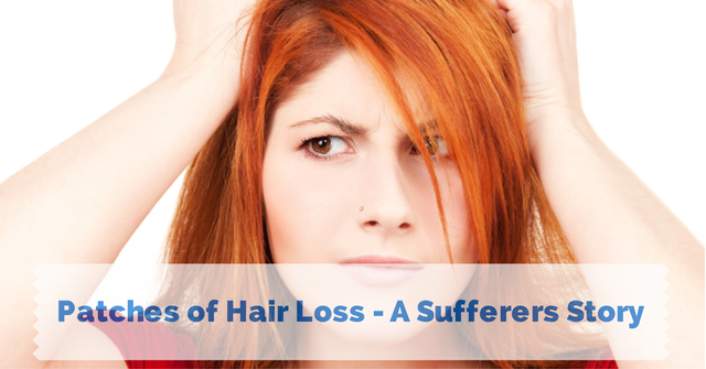 Patches of Hair Loss – A Sufferers Story