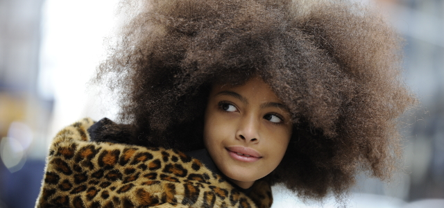 Black / Afro Caribbean Hair & Scalp Conditions