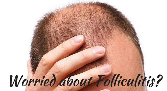 Folliculitis Hair Loss Treatment