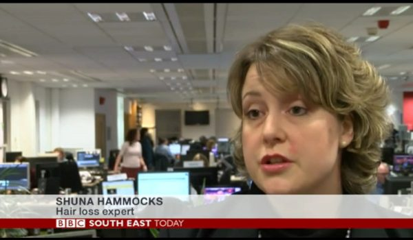 Talking About Alopecia Areata on BBC South East
