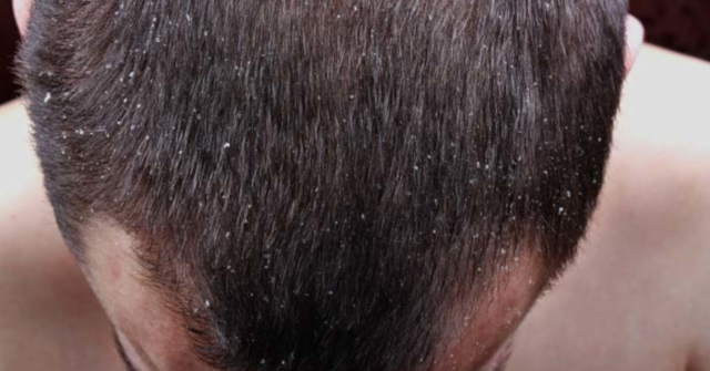 Dandruff vs Dry Scalp vs Psoriasis – What's The Difference?