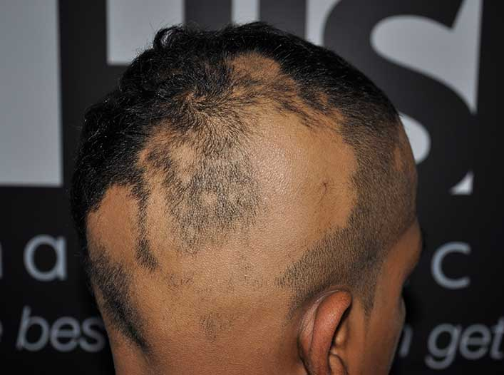 How long does it take for Alopecia to go away?