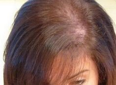 51-year-old Woman Complaining of Hair Thinning