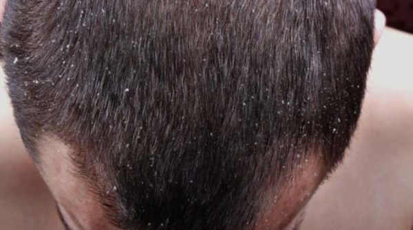 What causes extremely dry scalp?