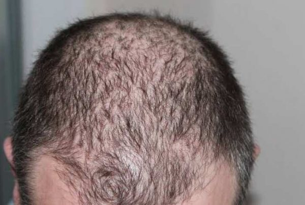 How do hair follicles become get infected? Can you treat infected hair follicles at home?