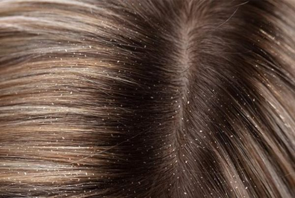 What is the difference between dandruff and eczema?