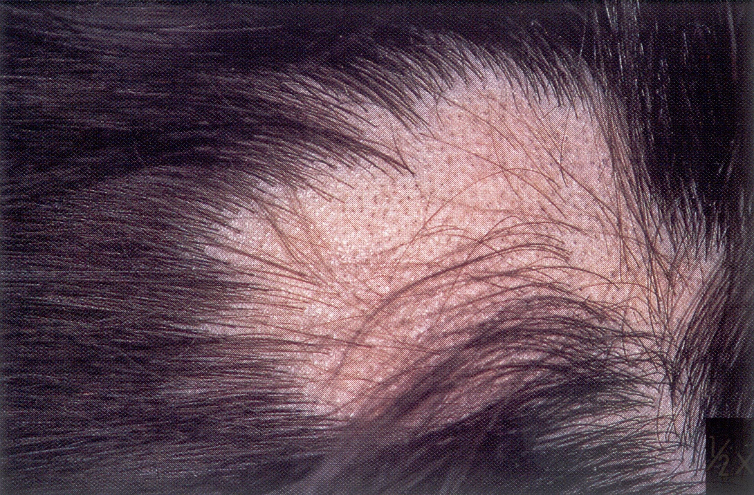 What is Alopecia Areata (Patches of Hair Loss)?