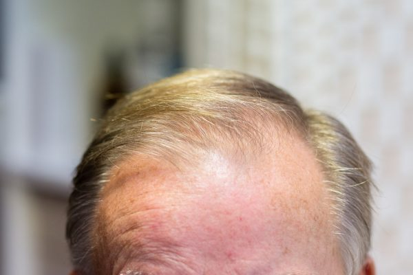 Male Pattern Baldness 2