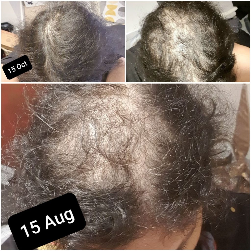 Telogen Effluvium Before After Picture